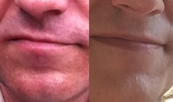 Anna's chin (left) after laser treatment in May 2017, (right) in December 2017